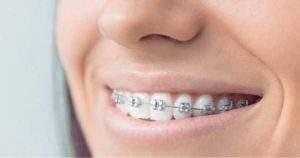 ¿Se pueden caer los dientes con los brackets?