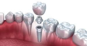 Solución a preguntas comunes sobre los implantes dentales