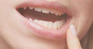 Soluciones para reparar un diente astillado