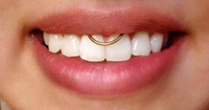 ¿Son perjudiciales los piercings orales?