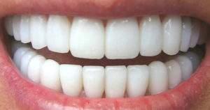 Técnicas para corregir la posición de los dientes