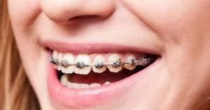 Tips para proteger tus dientes con brackets