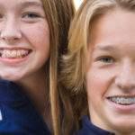 Todo lo que debes saber de la ortodoncia infantil