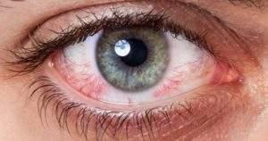 Todo lo que debes saber sobre los lentes intraoculares