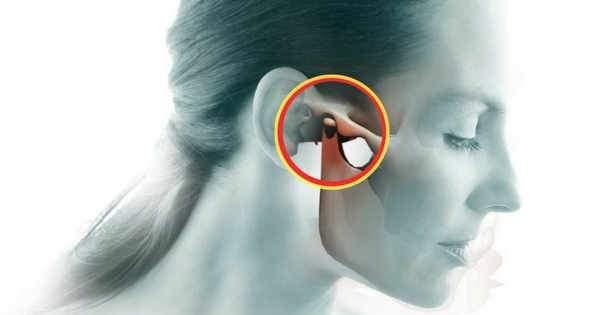 Dolor de oido y mandibula izquierda
