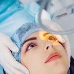 Una guía breve para entender la cirugía Lasik