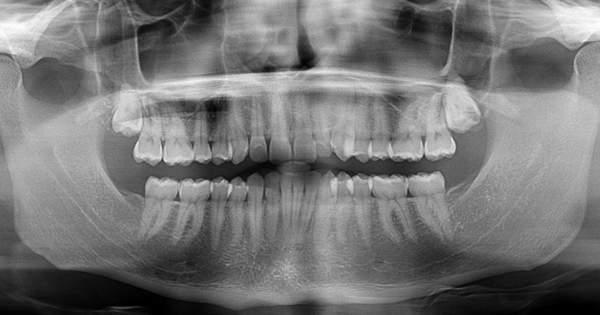 agenesia de radiografía