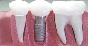 Ventajas interesantes de los implantes dentales