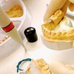 ¿Qué es un laboratorio dental y cuáles son sus funciones?